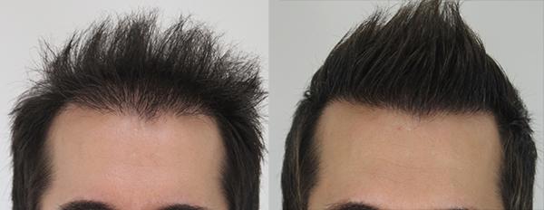 hair-transplant-medgurus